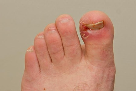 Ingrown Toe Nails