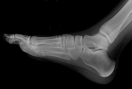 Xray Foot